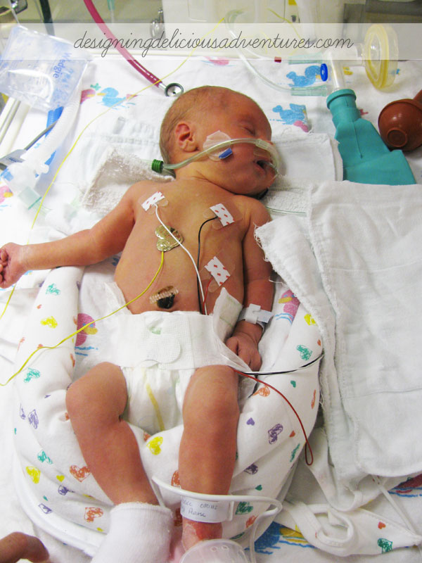 Caring for a Preemie